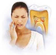 Гиперчувствительность зубов 2