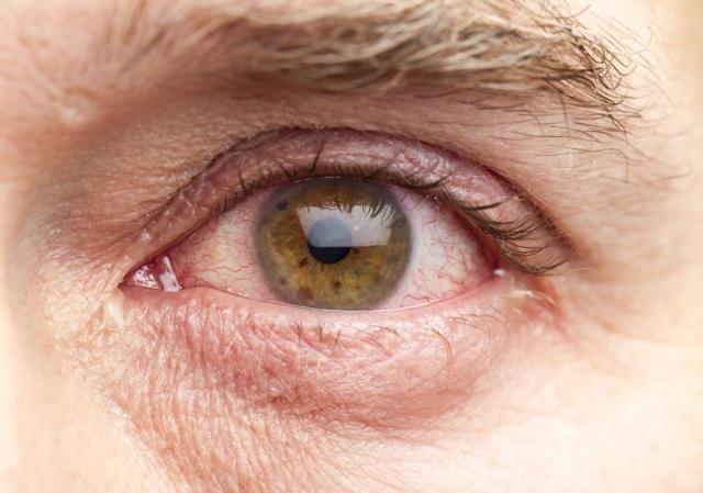 Синдром «красных глаз»: причины и лечение