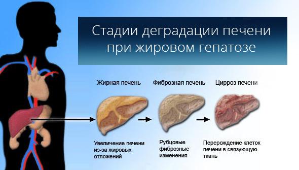 Жировой гепатоз: причины, симптомы и лечение