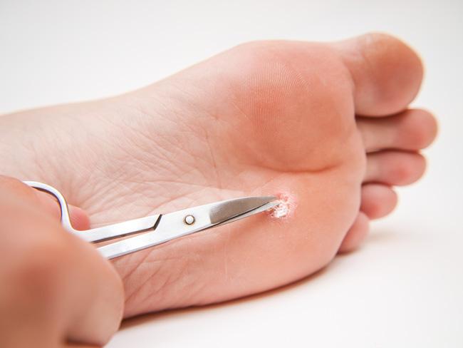 Как избавиться от бородавок на ноге в домашних условиях