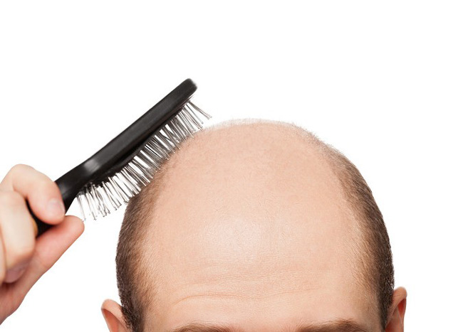 Почему мужчина рано лысеет?