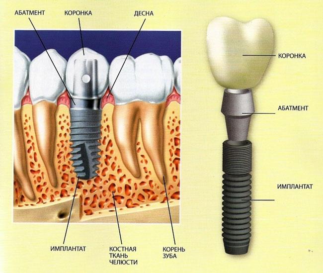 Зубик будет, как новый. Немного про имплантацию.