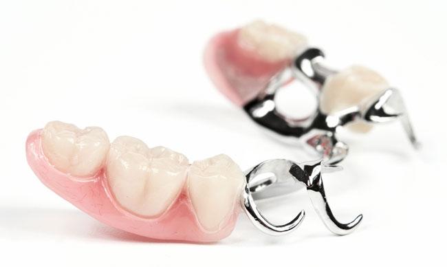 «Нестрашное» протезирование зубов