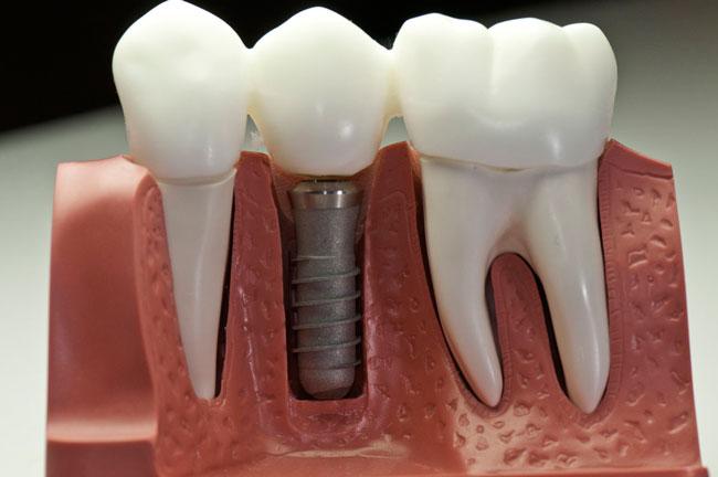 Недостатки и преимущества при имплантации зубов
