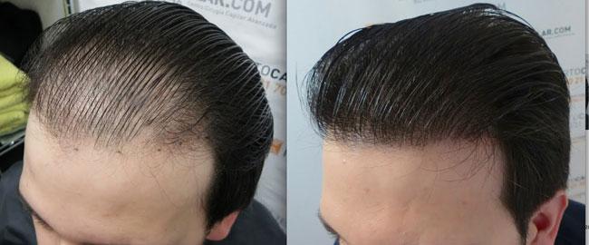 Современные способы трансплантации волос