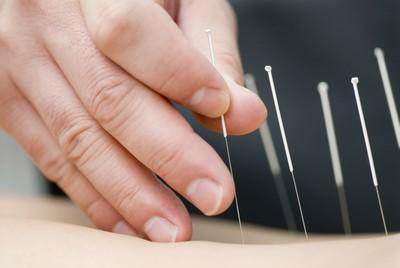 Лечение с помощью иглоукалывания